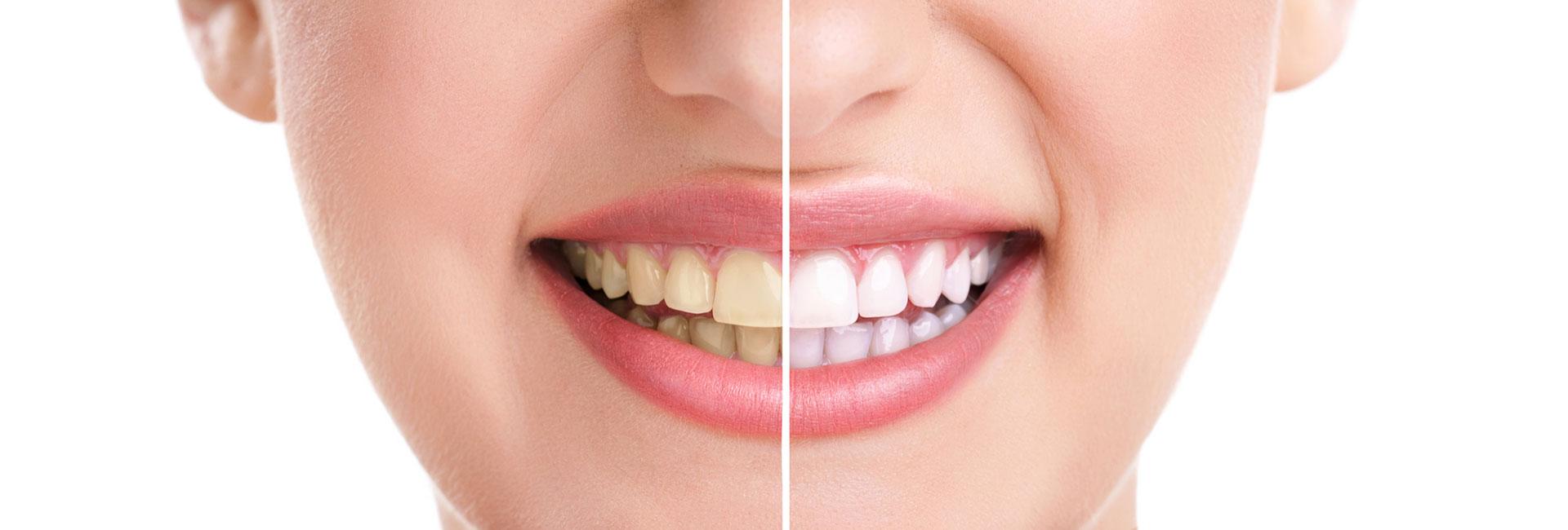 Healthy teeth and smile B